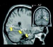 Neuroeducación: estrategias basadas en el funcionamiento del cerebro